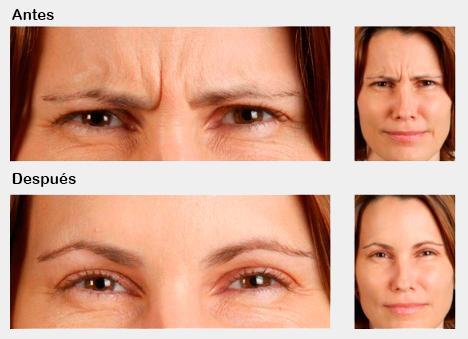 Tratamiento de las arrugas de expresión